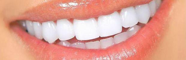 Las ventajas de los implantes dentales frente a los puentes